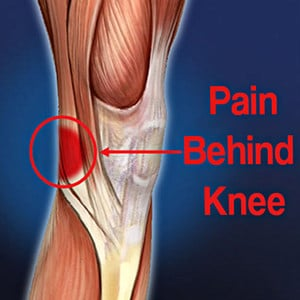 5 Pain Behind Knee Causes with Relief Tips - Pro Knee Pain Relief