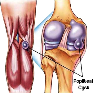 Pain behind the knees bakers cyst pro knee pain relief pain behind the knees ccuart Images