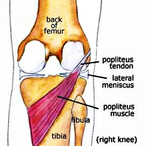 Pain Behind Knee Coming from the Popliteus Muscle