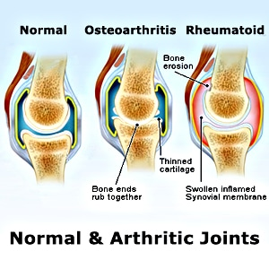 Arthritis Knee Pain
