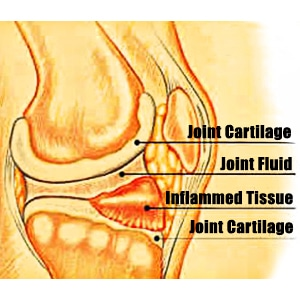 Gout in the Knee