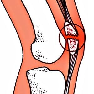 Patella-Fracture-Broken-Kneecap
