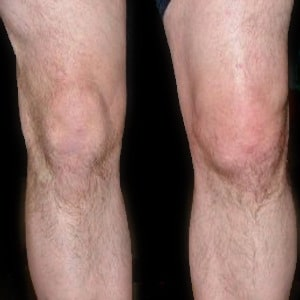 Water on the knee knee effusion pro knee pain relief water on the knee knee effusion ccuart Images