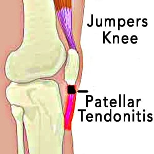 jumpers knee patellar tendonitis