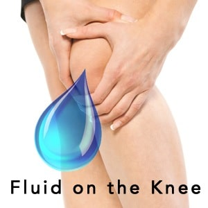 Fluid on the Knee